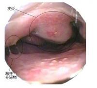 导致过敏性鼻炎的原因