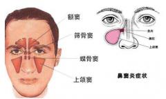 成都耳鼻喉医院怎么治鼻窦炎