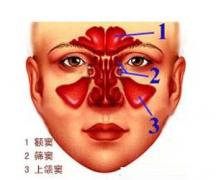 怎么诊断鼻窦炎
