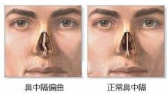 鼻中隔偏曲的症状