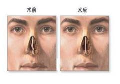 如何有效治疗鼻中隔偏曲?