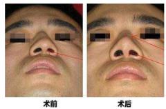 鼻中隔偏曲必须手术吗