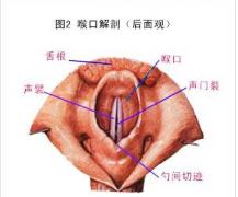 慢性咽炎怎么预防
