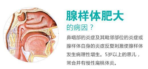 急性腺样体炎是怎么回事