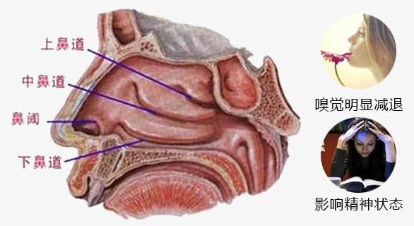 鼻甲肥大是怎么引起的