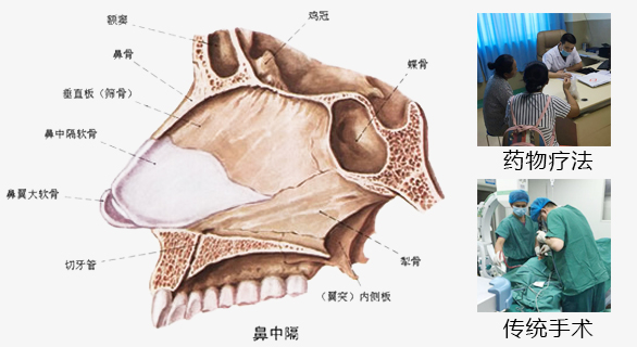 鼻中隔偏曲有哪些症状表现