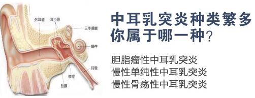 导致中耳乳突炎的原因是什么