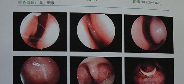 咽喉炎怎样有效预防 有什么方法可以治疗