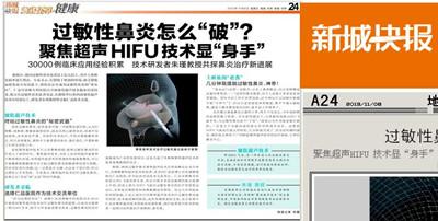 """【新城快报】聚焦超声技术 终结过敏性鼻炎的""""秘密武器"""""""