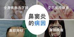 鼻窦炎该怎么办平时需要注意什么
