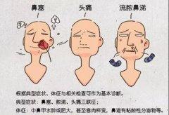 成都鼻甲肥大不治会带来哪些危害