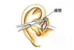 耳前瘘管感染后症状有哪些