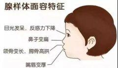 小儿腺样体肥大常见的症状表现?